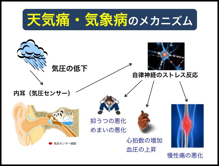 天気痛・気象病のメカニズム